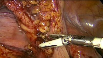 Sygmoidectomy