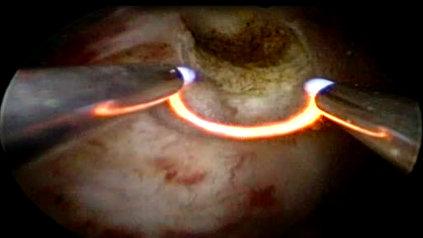 Hysteroresection myoma