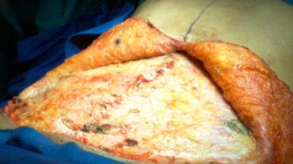 Abdominal lipectomy